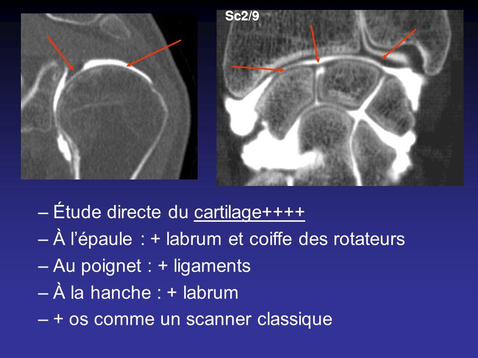 Étude directe du cartilage++++