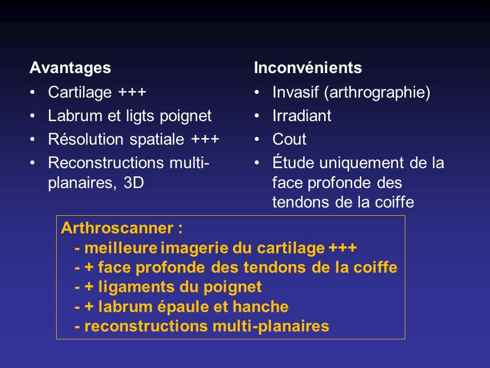 Avantages Inconvénients. Cartilage +++ Labrum et ligts poignet. Résolution spatiale +++ Reconstructions multi-planaires, 3D.