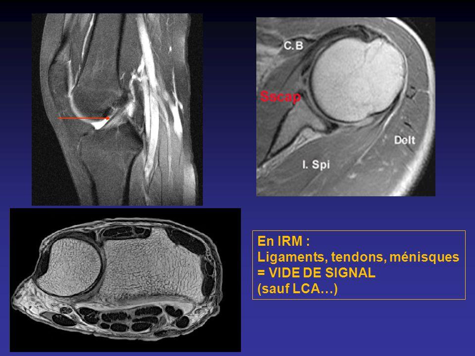 En IRM : Ligaments, tendons, ménisques = VIDE DE SIGNAL (sauf LCA…)