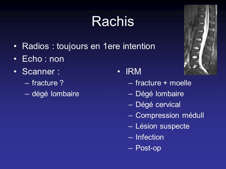 Rachis Radios : toujours en 1ere intention Echo : non Scanner : IRM
