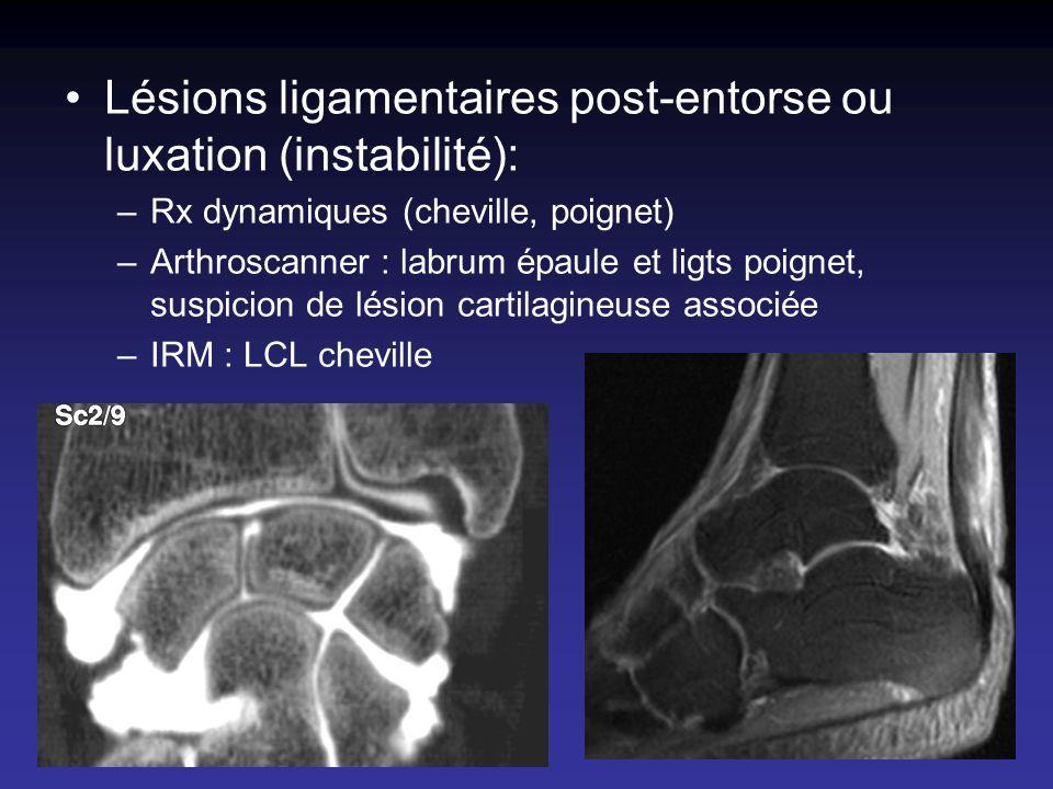 Lésions ligamentaires post-entorse ou luxation (instabilité):