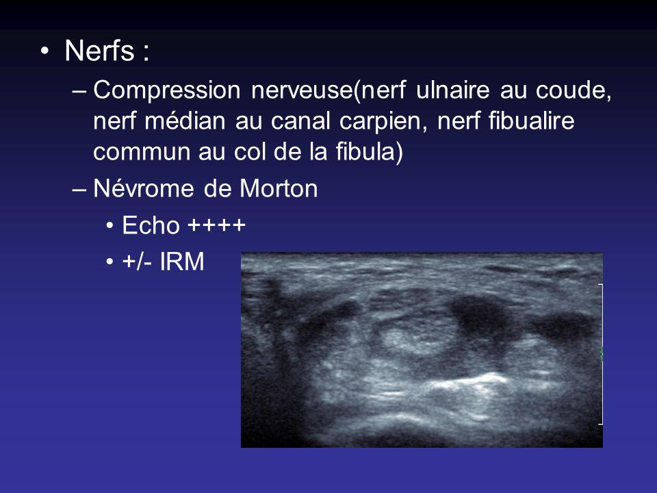 Nerfs : Compression nerveuse(nerf ulnaire au coude, nerf médian au canal carpien, nerf fibualire commun au col de la fibula)