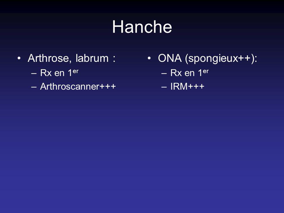 Hanche Arthrose, labrum : ONA (spongieux++): Rx en 1er