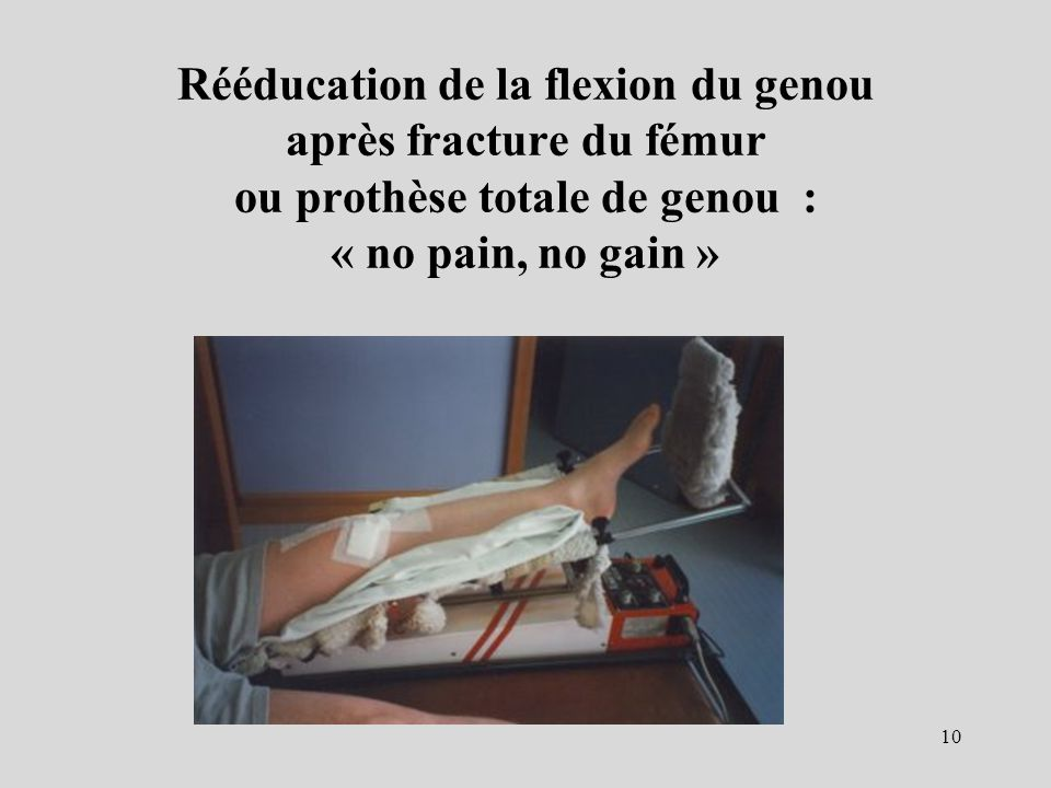 Rééducation de la flexion du genou après fracture du fémur ou prothèse totale de genou : « no pain, no gain »