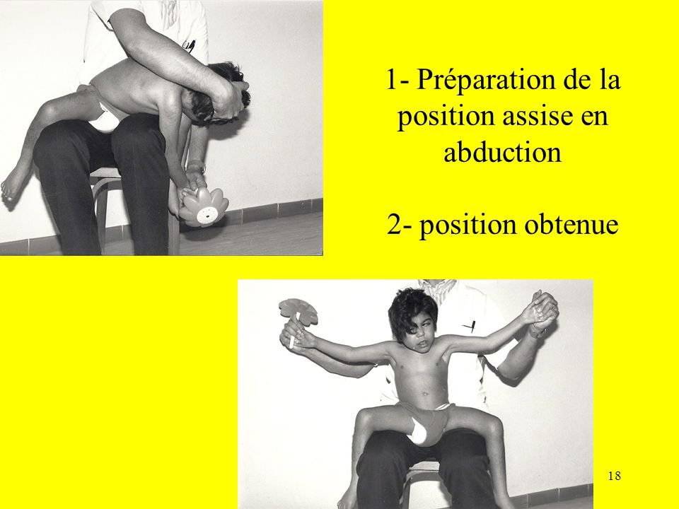 1- Préparation de la position assise en abduction 2- position obtenue