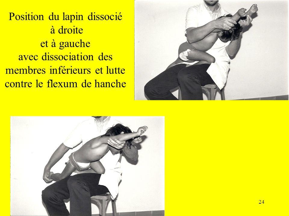 Position du lapin dissocié à droite et à gauche avec dissociation des membres inférieurs et lutte contre le flexum de hanche