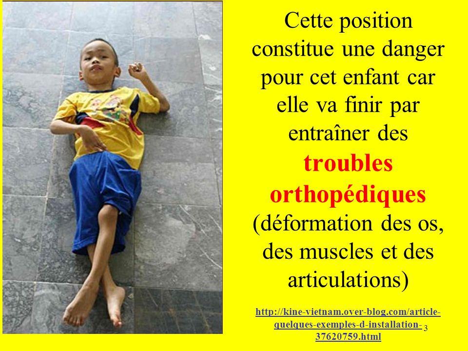 Cette position constitue une danger pour cet enfant car elle va finir par entraîner des troubles orthopédiques (déformation des os, des muscles et des articulations) http://kine-vietnam.over-blog.com/article-quelques-exemples-d-installation-37620759.html