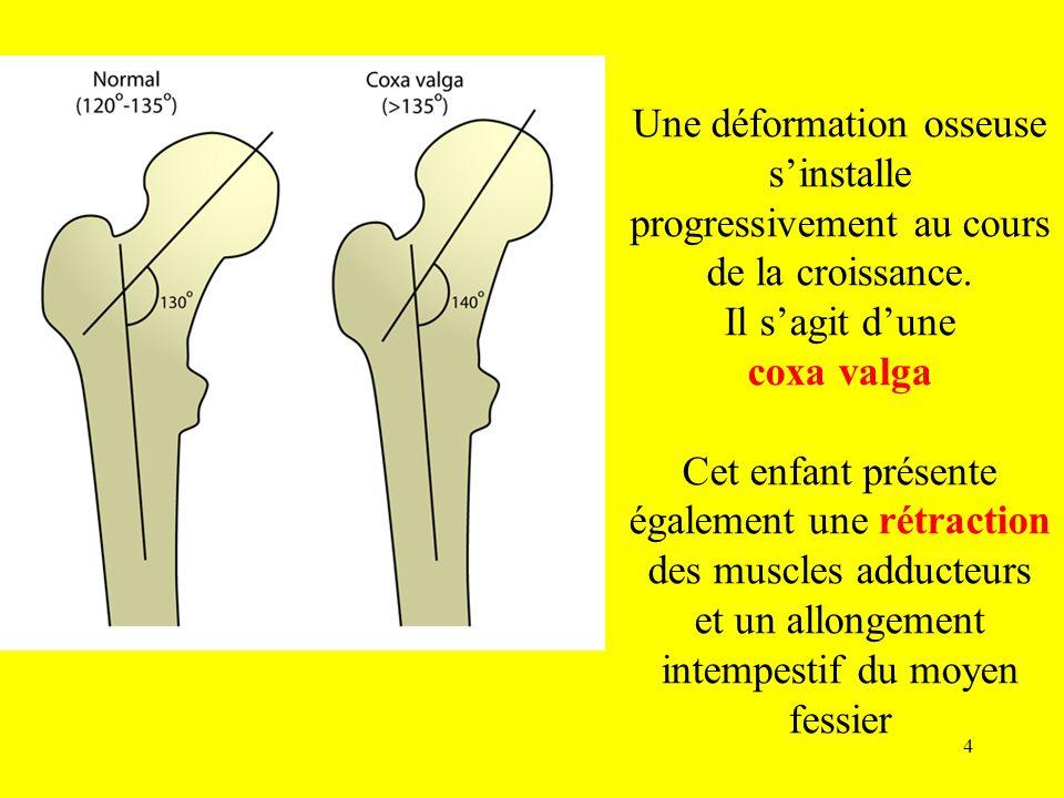 Une déformation osseuse s'installe progressivement au cours de la croissance.