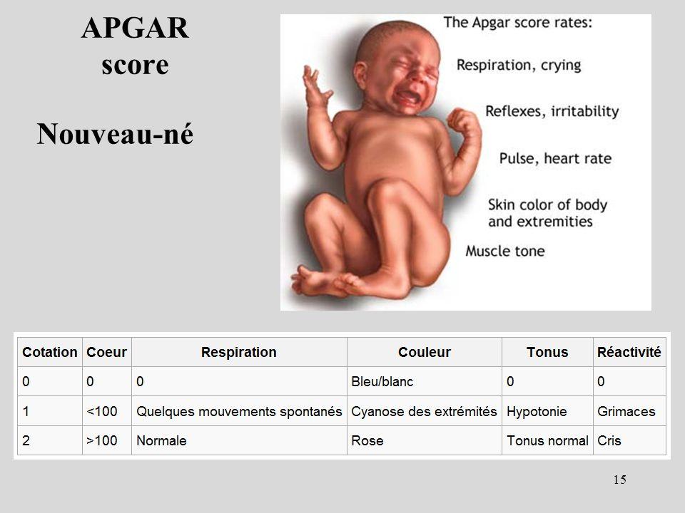 APGAR score Nouveau-né