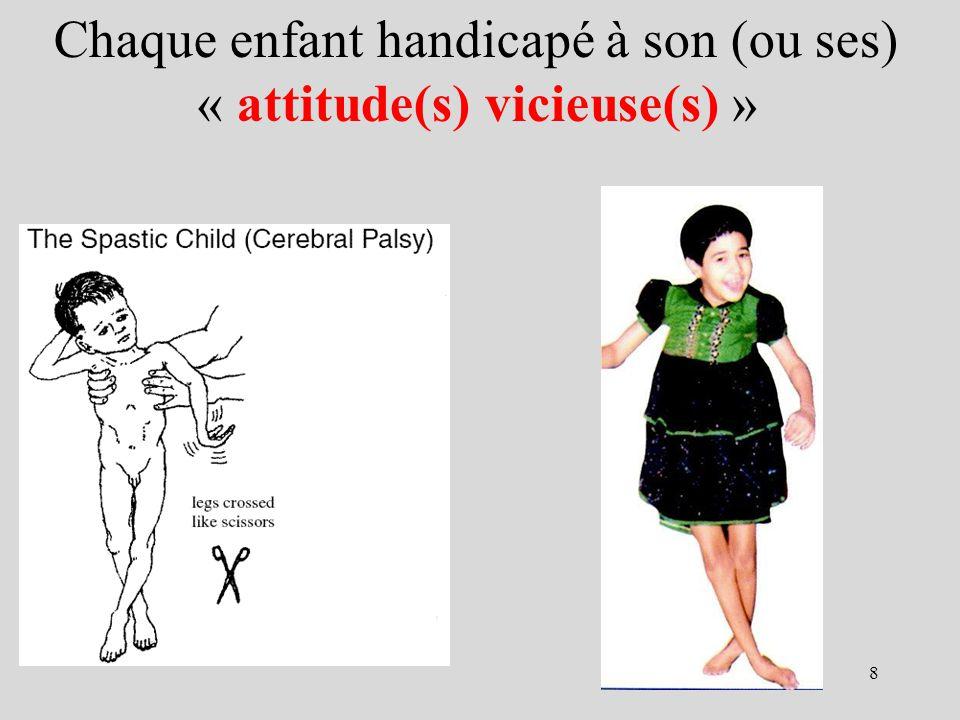 Chaque enfant handicapé à son (ou ses) « attitude(s) vicieuse(s) »