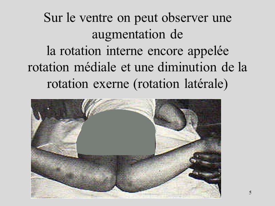 Sur le ventre on peut observer une augmentation de la rotation interne encore appelée rotation médiale et une diminution de la rotation exerne (rotation latérale)