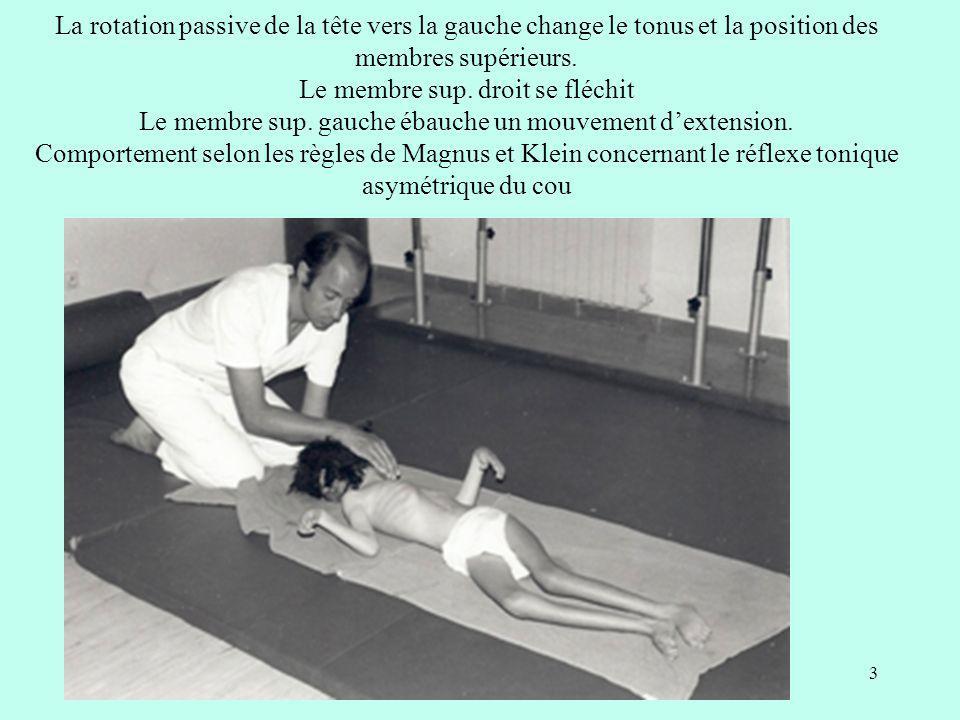 La rotation passive de la tête vers la gauche change le tonus et la position des membres supérieurs.
