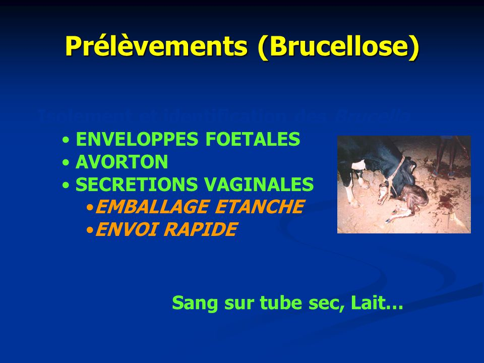 Prélèvements (Brucellose)