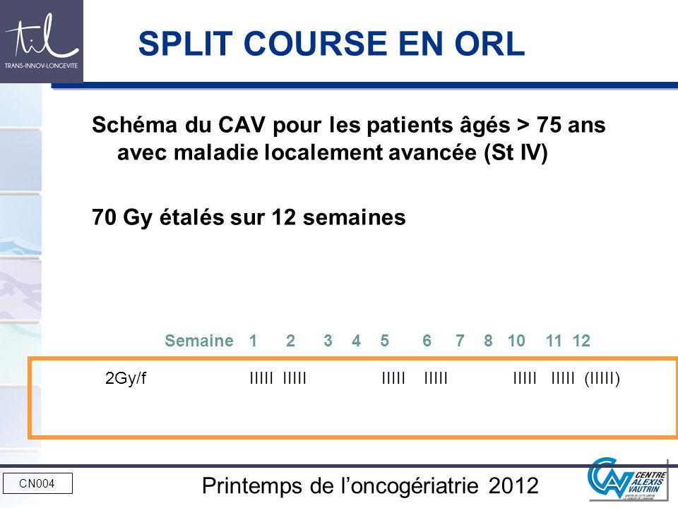 SPLIT COURSE EN ORL Schéma du CAV pour les patients âgés > 75 ans avec maladie localement avancée (St IV)