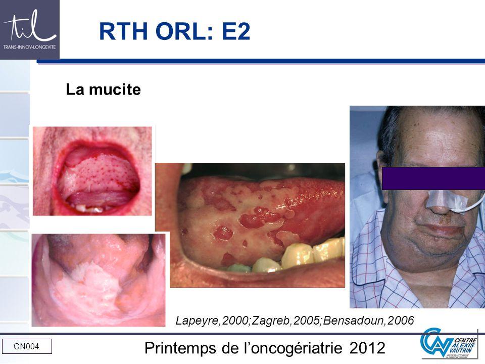 RTH ORL: E2 La mucite Lapeyre,2000;Zagreb,2005;Bensadoun,2006