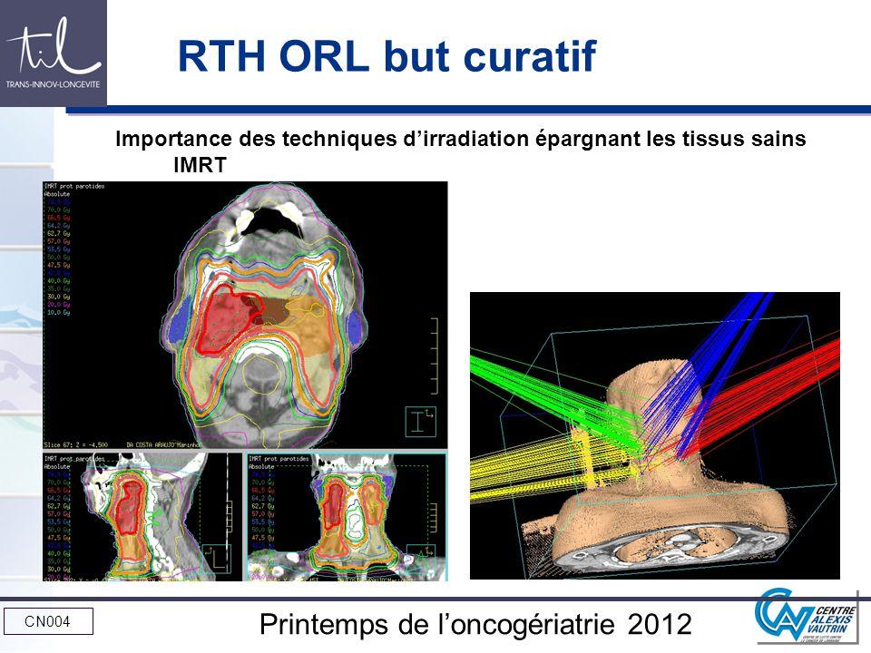RTH ORL but curatif Importance des techniques d'irradiation épargnant les tissus sains IMRT