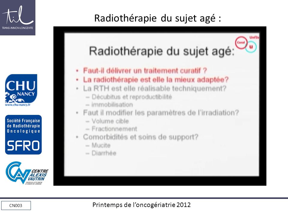 Radiothérapie du sujet agé :