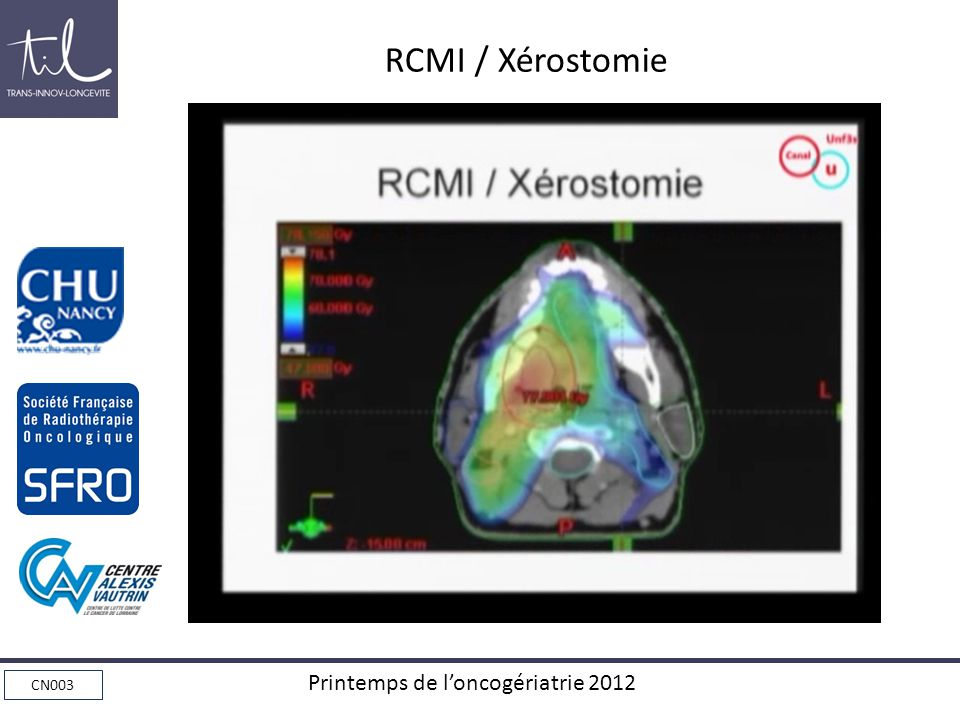 RCMI / Xérostomie