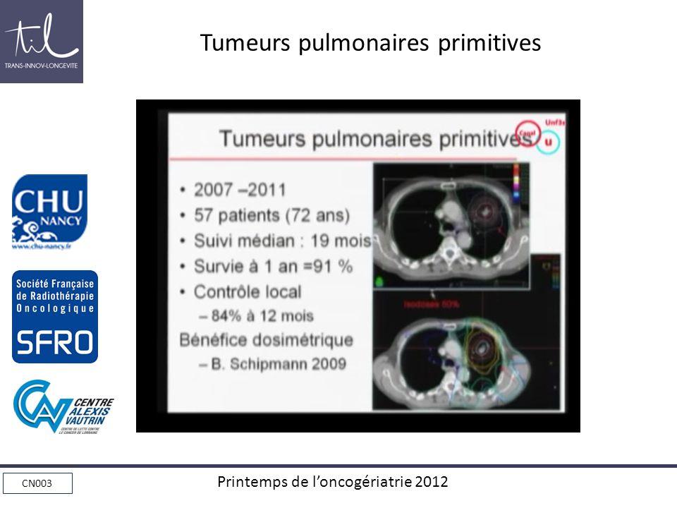 Tumeurs pulmonaires primitives