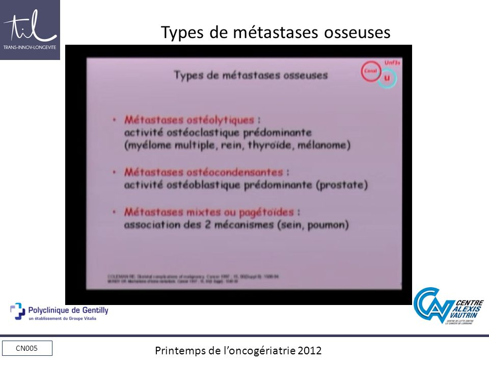 Types de métastases osseuses