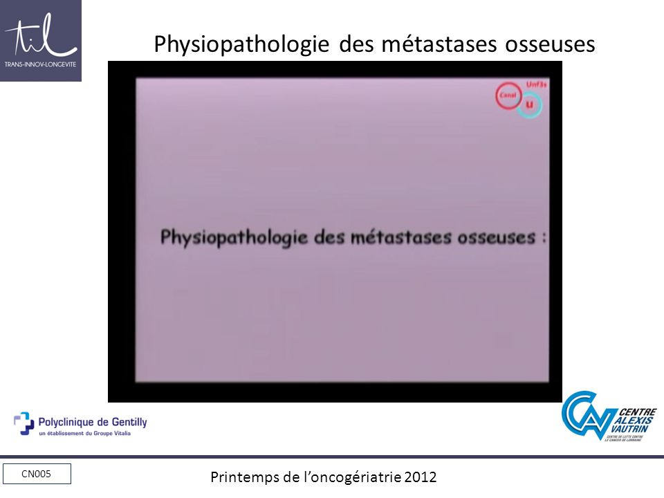 Physiopathologie des métastases osseuses
