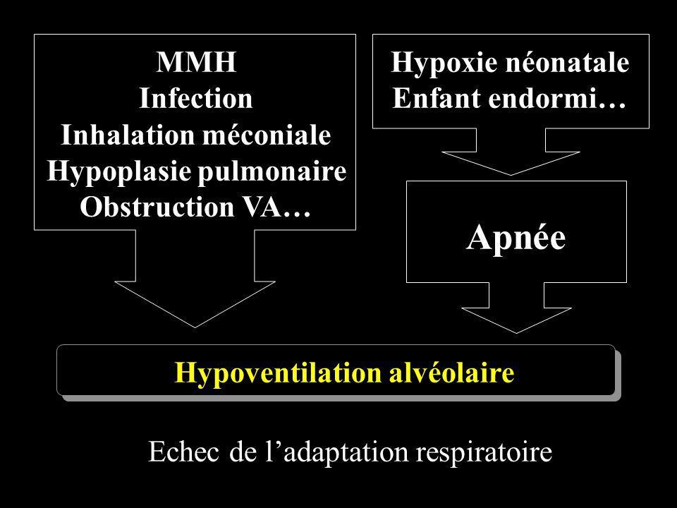 Hypoplasie pulmonaire Hypoventilation alvéolaire