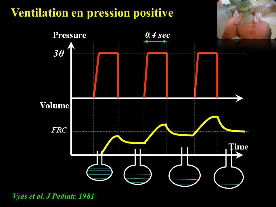 Ventilation en pression positive