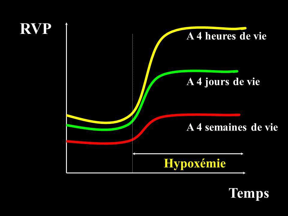 RVP Temps Hypoxémie A 4 heures de vie A 4 jours de vie