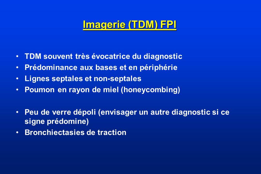 Imagerie (TDM) FPI TDM souvent très évocatrice du diagnostic