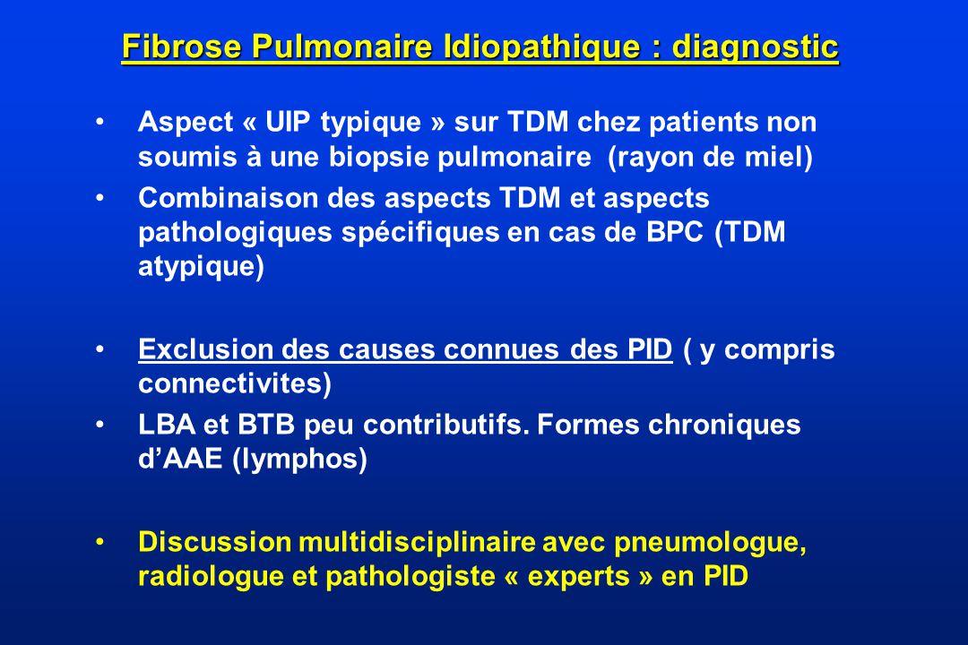 Fibrose Pulmonaire Idiopathique : diagnostic
