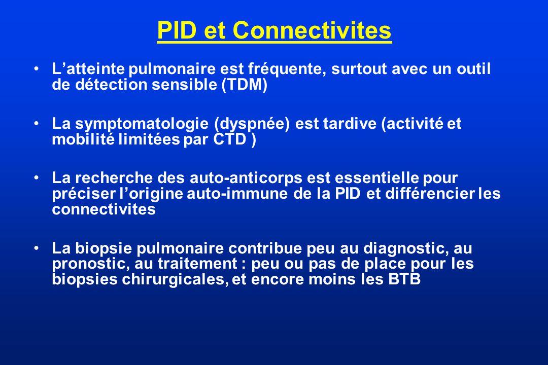 PID et Connectivites L'atteinte pulmonaire est fréquente, surtout avec un outil de détection sensible (TDM)