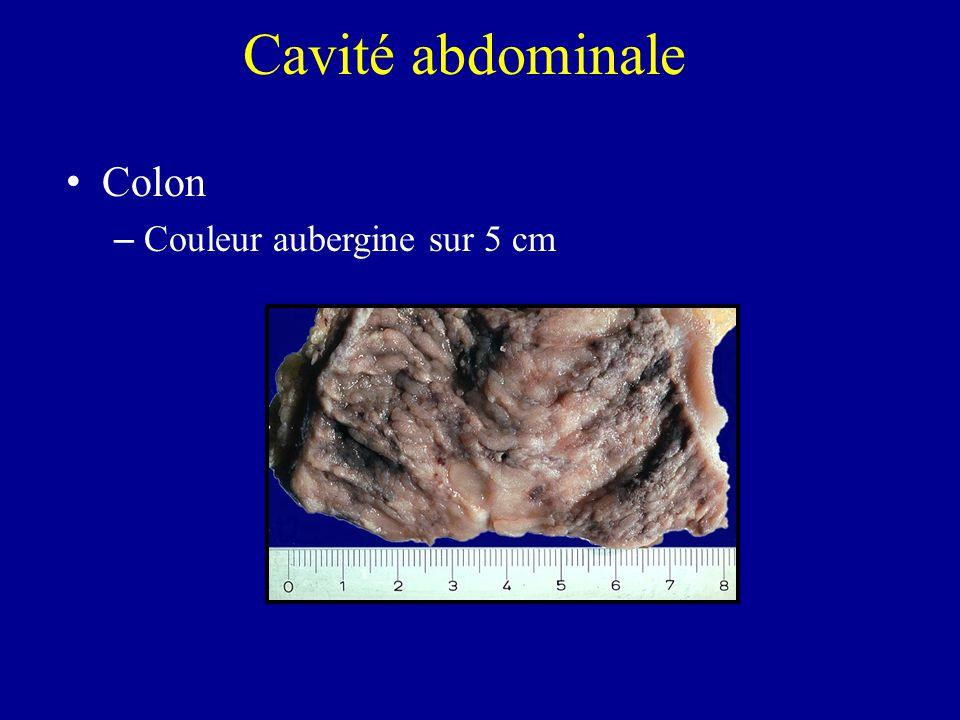 Cavité abdominale Colon Couleur aubergine sur 5 cm