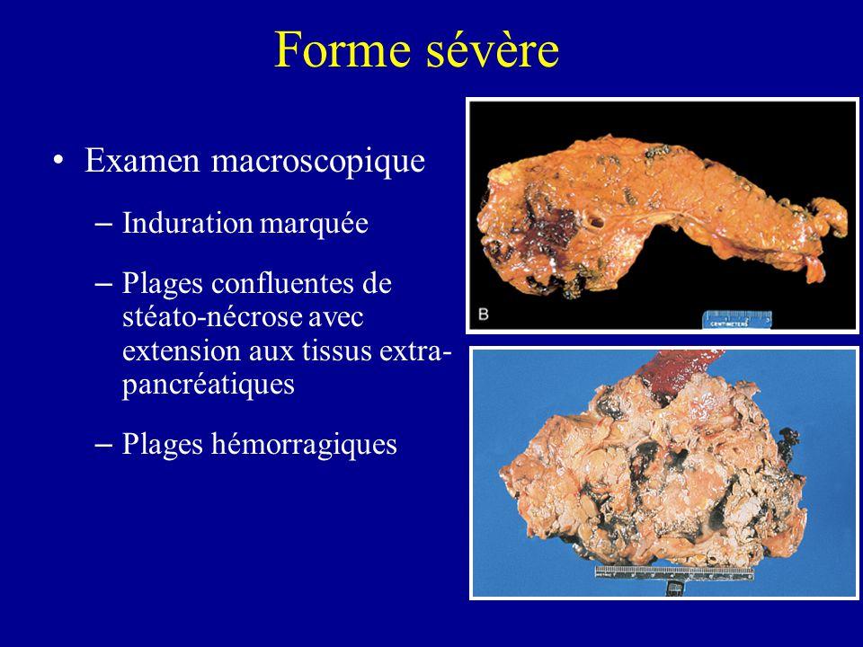 Forme sévère Examen macroscopique Induration marquée