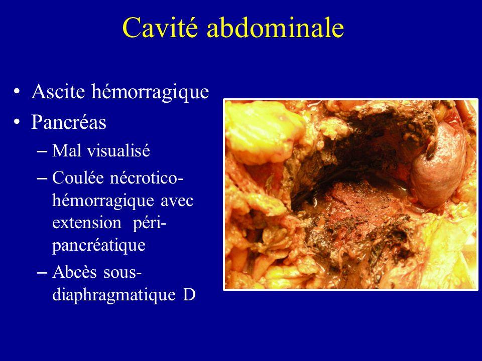 Cavité abdominale Ascite hémorragique Pancréas Mal visualisé