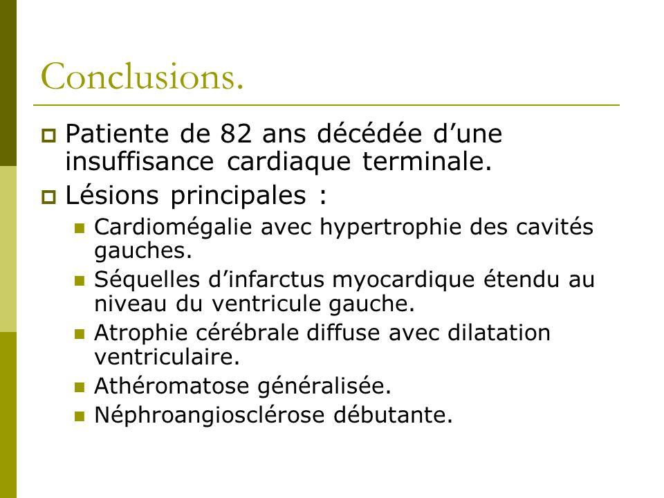 Conclusions. Patiente de 82 ans décédée d'une insuffisance cardiaque terminale. Lésions principales :