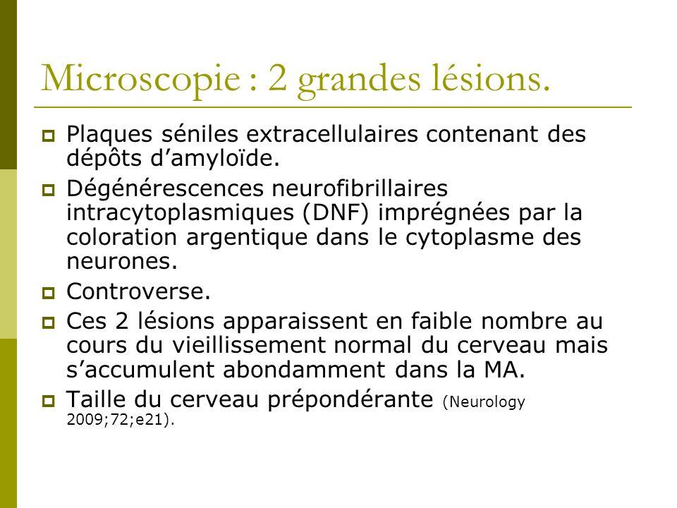 Microscopie : 2 grandes lésions.