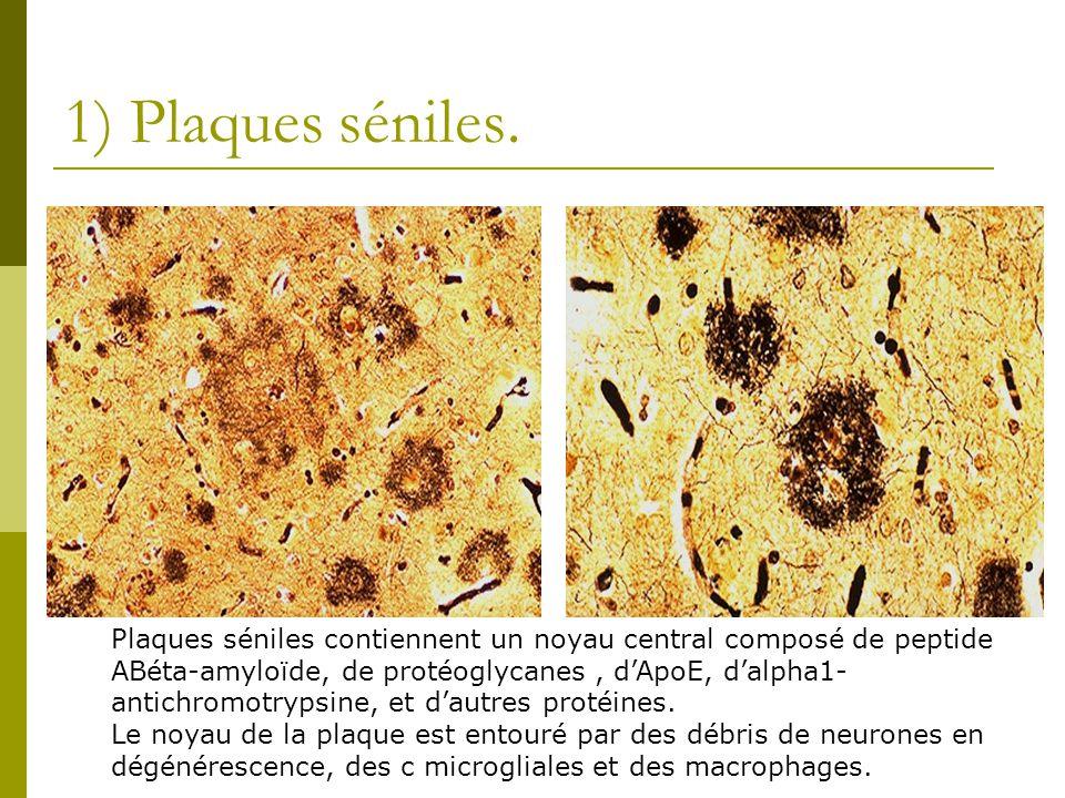 1) Plaques séniles. Plaques séniles contiennent un noyau central composé de peptide.