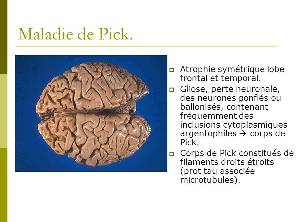 Maladie de Pick. Atrophie symétrique lobe frontal et temporal.