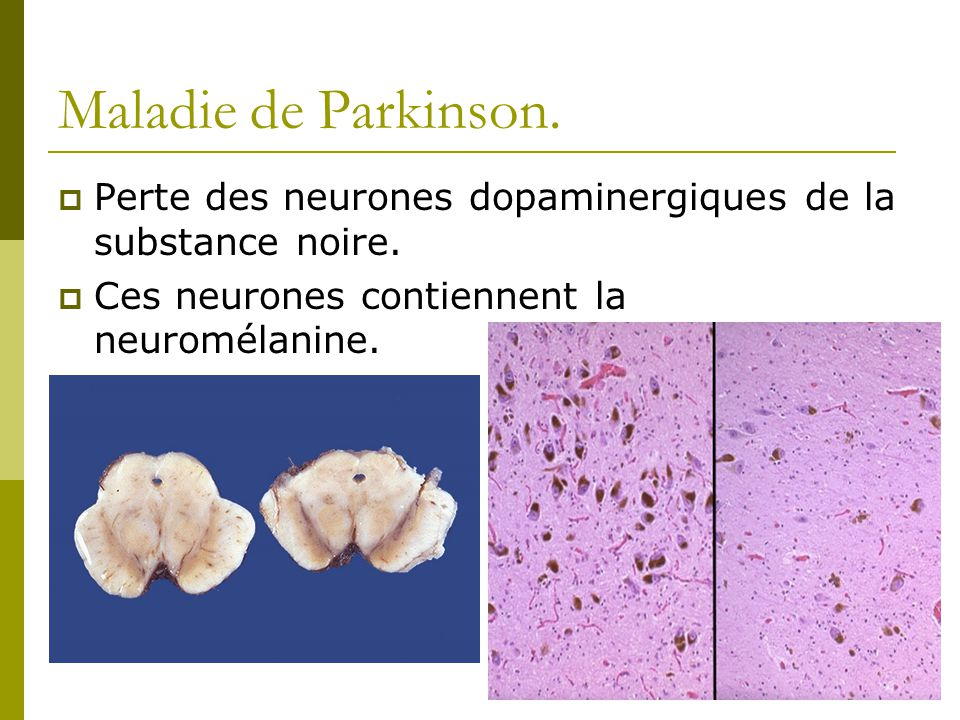 Maladie de Parkinson. Perte des neurones dopaminergiques de la substance noire.