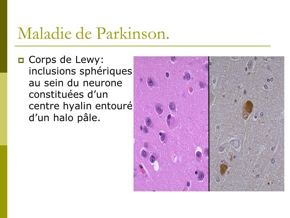 Maladie de Parkinson.