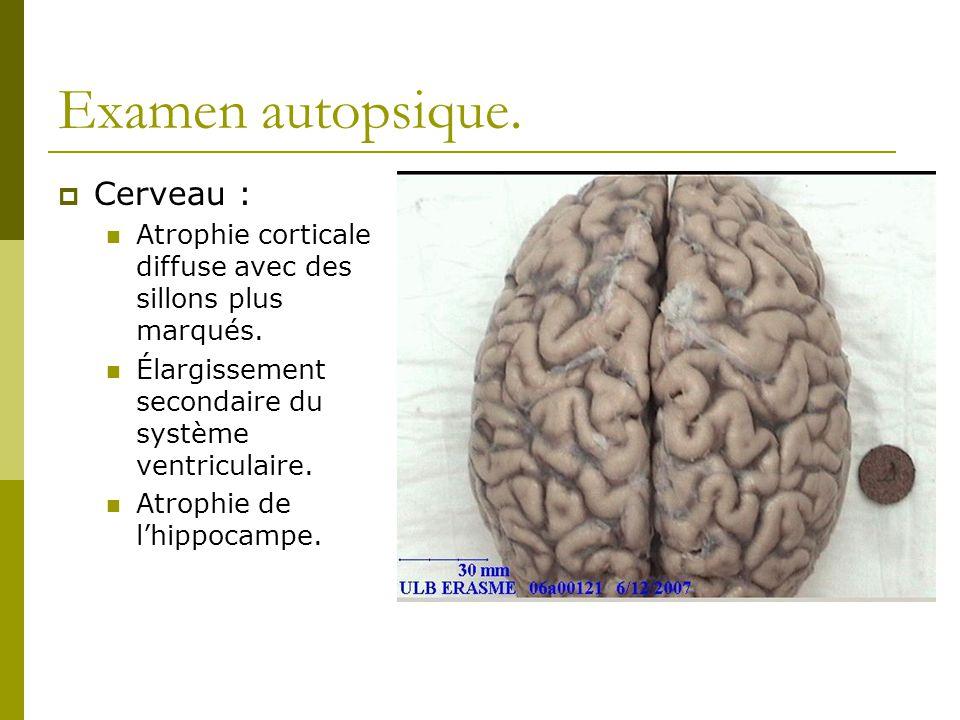 Examen autopsique. Cerveau :
