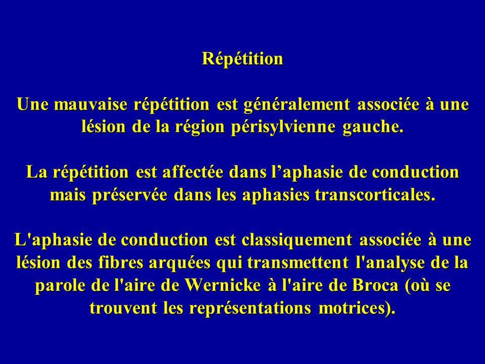 Répétition Une mauvaise répétition est généralement associée à une lésion de la région périsylvienne gauche.