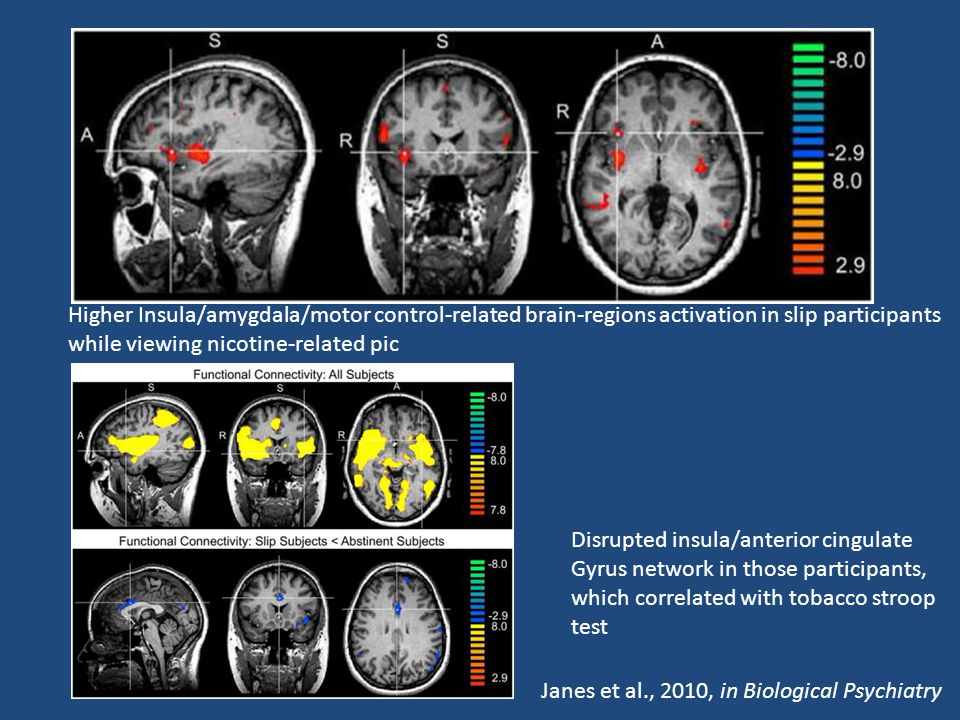 Higher Insula/amygdala/motor control-related brain-regions activation in slip participants