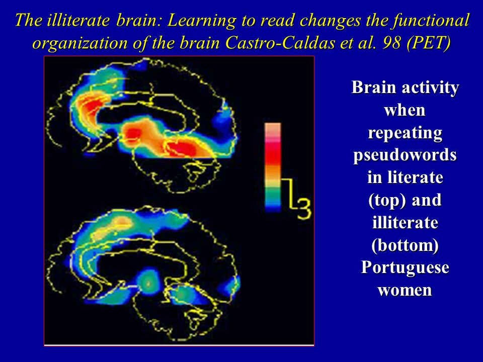 The illiterate brain: Learning to read changes the functional organization of the brain Castro-Caldas et al. 98 (PET)