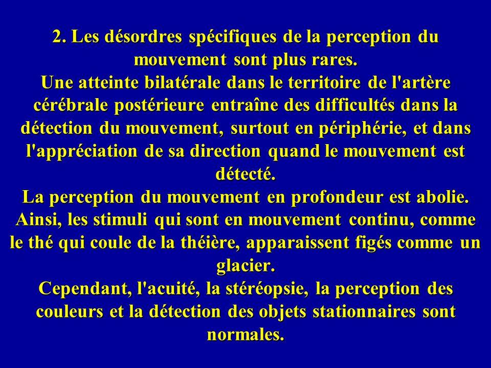 2. Les désordres spécifiques de la perception du mouvement sont plus rares.