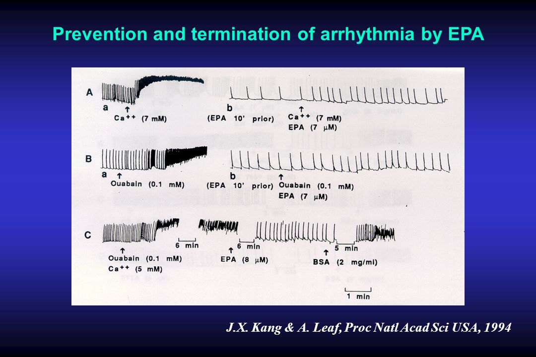 Prevention and termination of arrhythmia by EPA