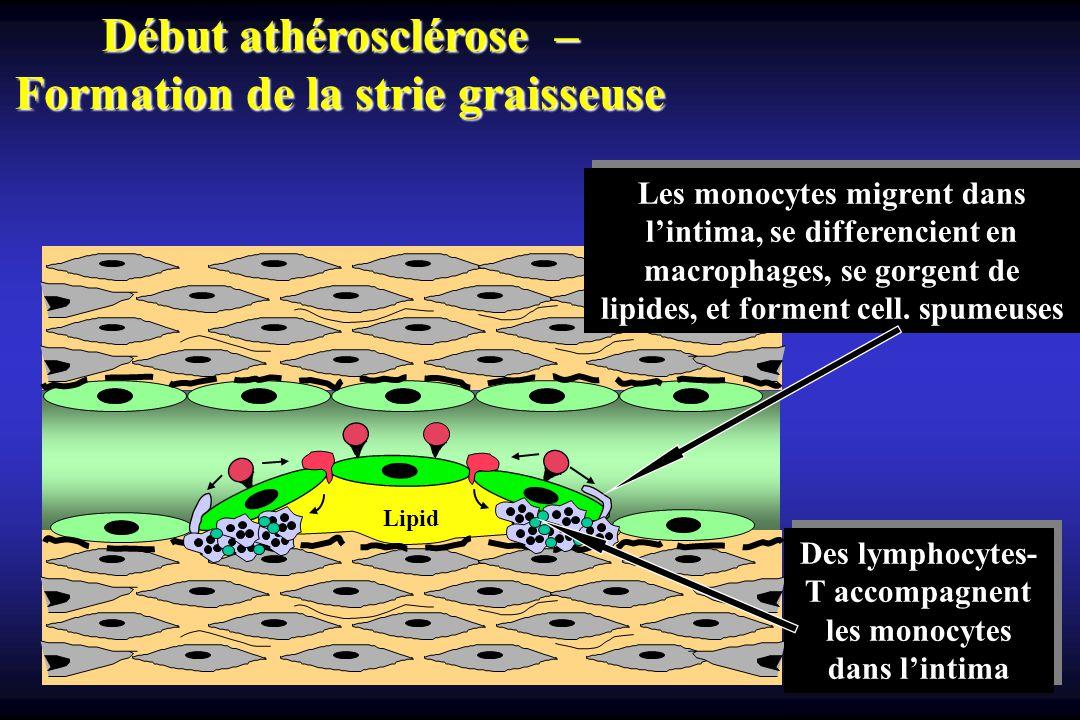 Début athérosclérose – Formation de la strie graisseuse