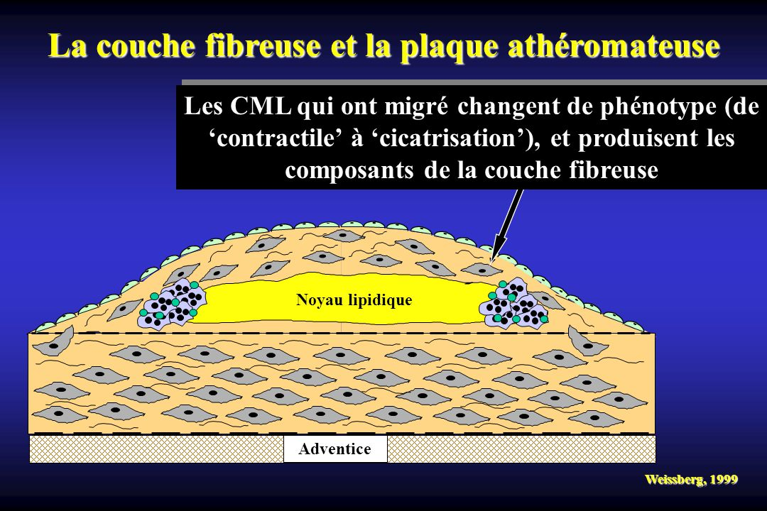 La couche fibreuse et la plaque athéromateuse