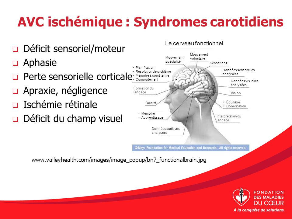 AVC ischémique : Syndromes carotidiens