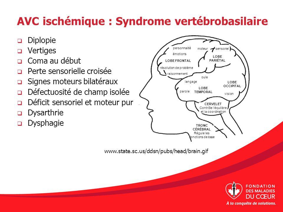 AVC ischémique : Syndrome vertébrobasilaire